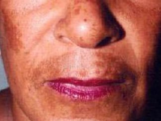 Face and Lip Problems - Doctor V.